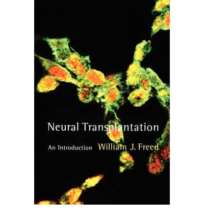 Neural Transplantation : An Introduction