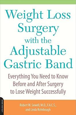 Weight Loss Surgery with the Adjustable Gastric Band : Everything You Need to Know Before and After Surgery to Lose Weight Successfully