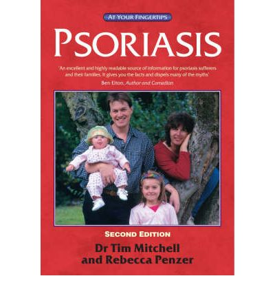 Psoriasis: The At Your Fingertips Guide