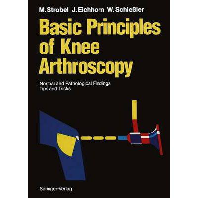 Basic Principles of Knee Arthroscopy : Normal and Pathological Findings Tips and Tricks