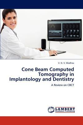 Cone Beam Computed Tomography in Implantology and Dentistry