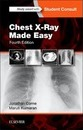Chest X-Ray Made Easy