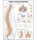 Human Spine Disorders Anatomical Chart